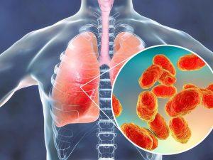 Pneumonia, como se proteger?