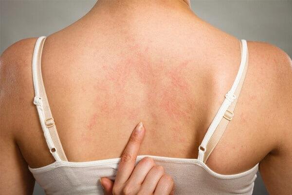 Manchas vermelhas na pele por causa do calor.